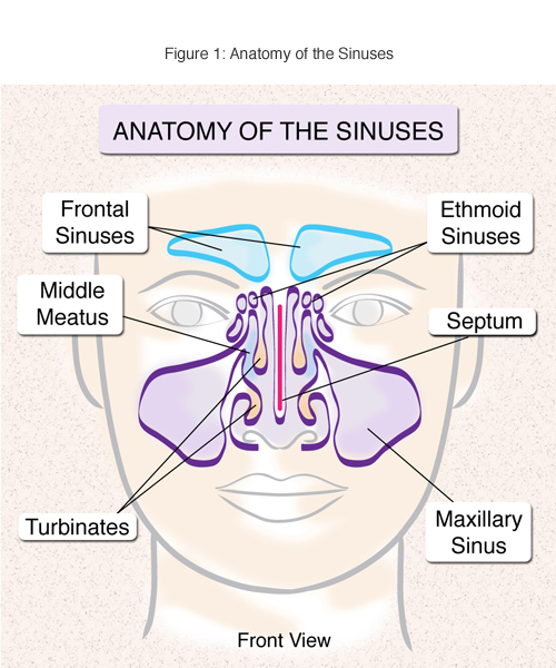 About Sinusitis