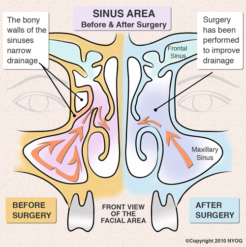 Sinus area before and after surgery diagram