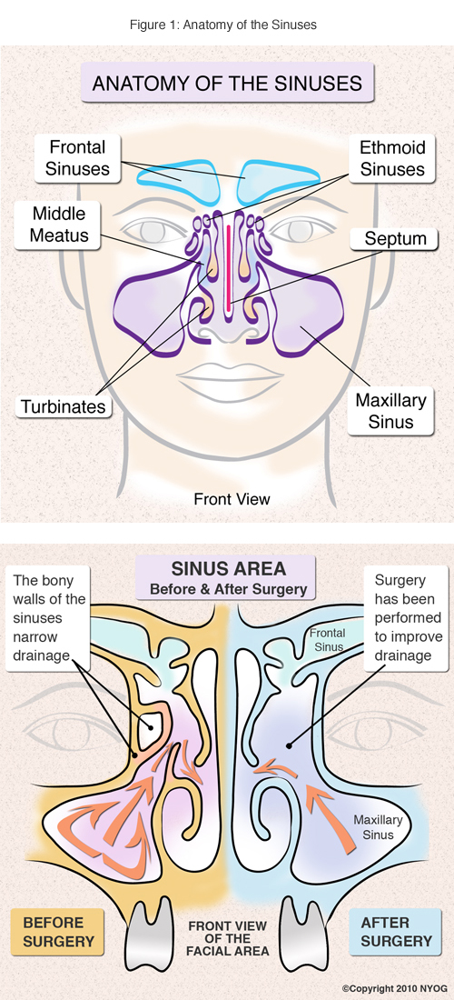 Sinus Anatomy Check Out This Helpful Diagram Ny Sinus Center