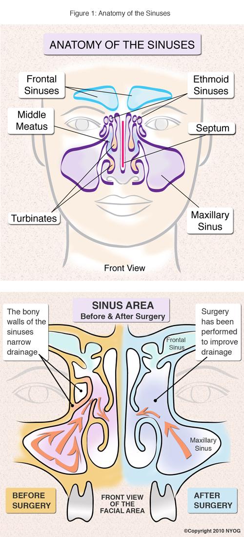 The New York Sinus Center