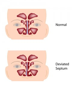deviated and normal septum