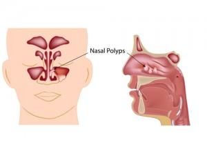 nasal polyps surgery