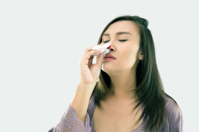 Treating a Nosebleed