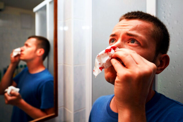 Nosebleed Tips